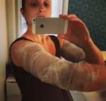 #aloka engessou o braço pra diminuir a circunferência do braço. É legal e funciona, mas seja ryca e procure numa clínica pra fazer menos sujeira. Chama gesso lipolítico.